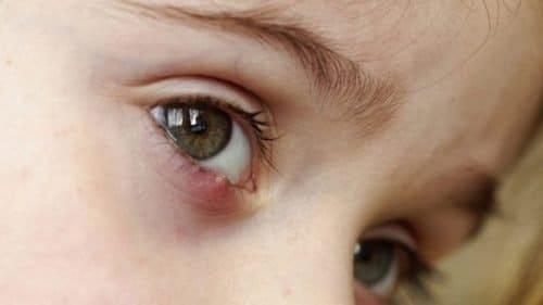 Ячмень на глазу - способы лечения, причины, симптомы
