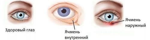 Как лечить быстро дома ячмень на глазу