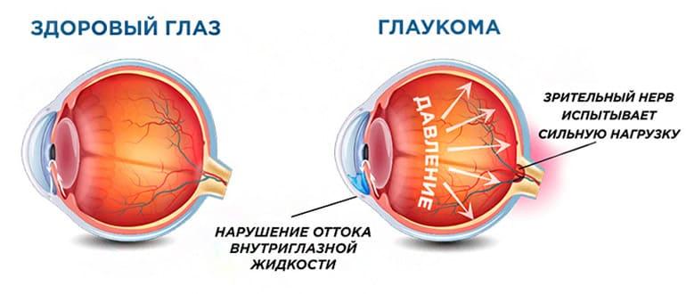 глаукома причины симптомы лечение
