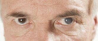 катаракта что это такое и как лечить