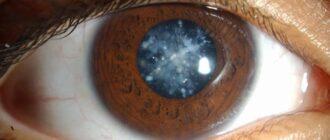 катаракта причины симптомы лечение профилактика