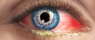 конъюнктивит симптомы причины лечение