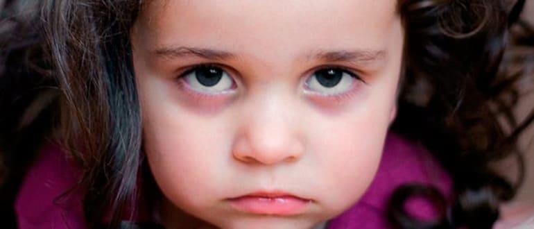 синяки под глазами у ребёнка