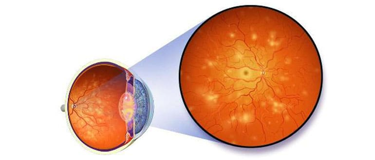 ангиопатия сетчатки глаза