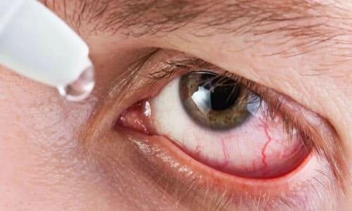 красные белки глаз
