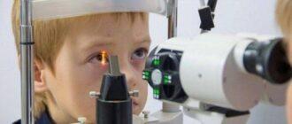 Смешанный астигматизм у детей