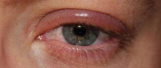 Почему отекают (опухают) верхние веки глаз