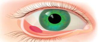 Внутренний ячмень на глазу