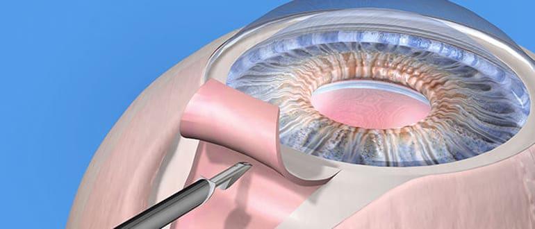 Операция при глаукоме на глаза