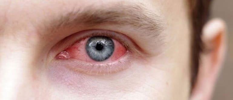воспаление глаз