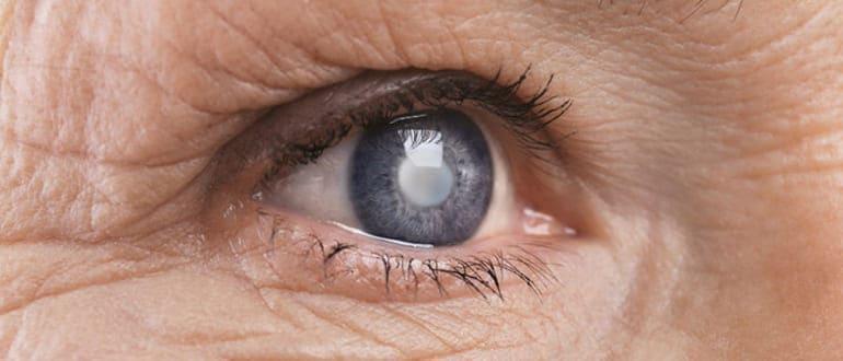 начальная катаракта