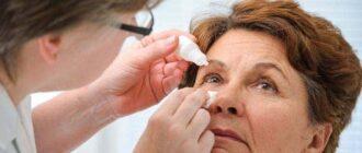 реабилитация после операции по удалению катаракты