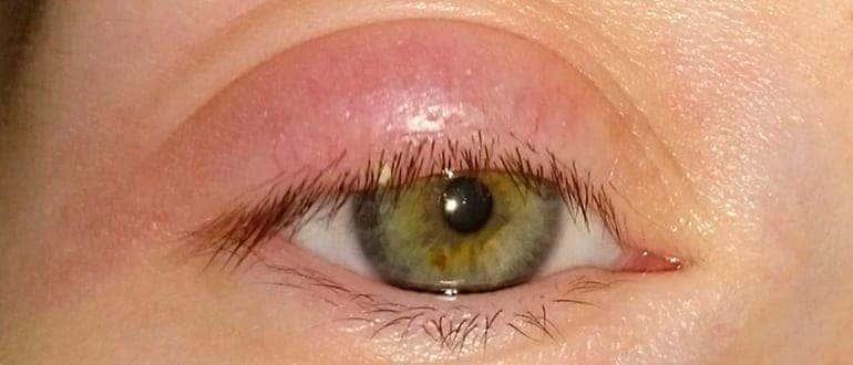 опух глаз