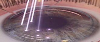 послеоперационный период после замены хрусталика глаза