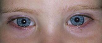конъюнктивит у детей — причины, симптомы и лечение