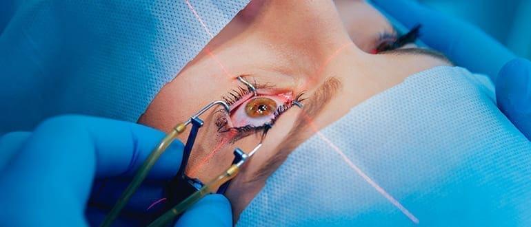 Лазерная операция на глаза по коррекции близорукости
