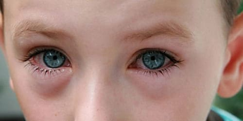 Вирусный детский конъюнктивит