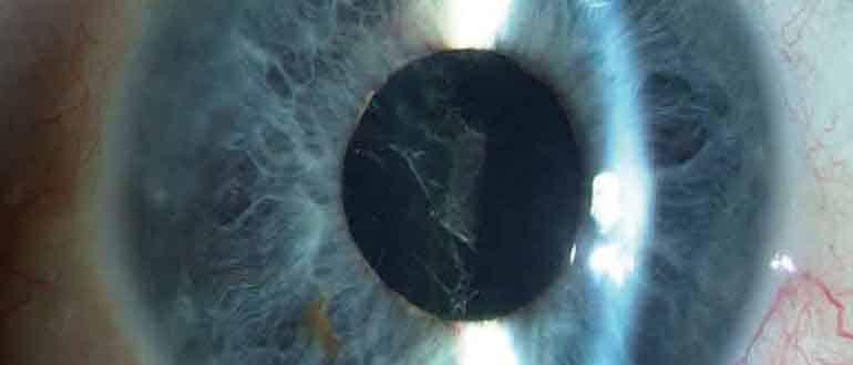 вторичная катаракта - причины, симптомы, лечение