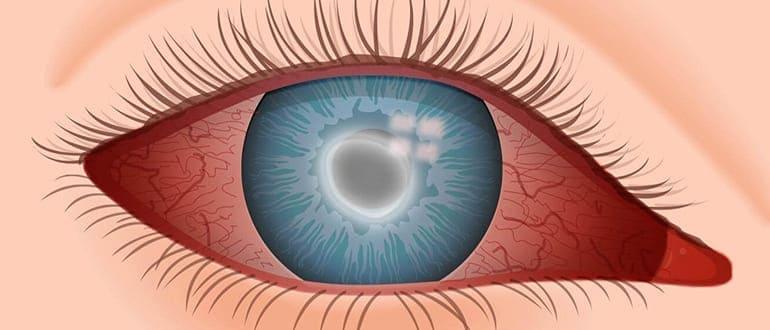 Кератит глаза - причины, симптомы и методы лечения