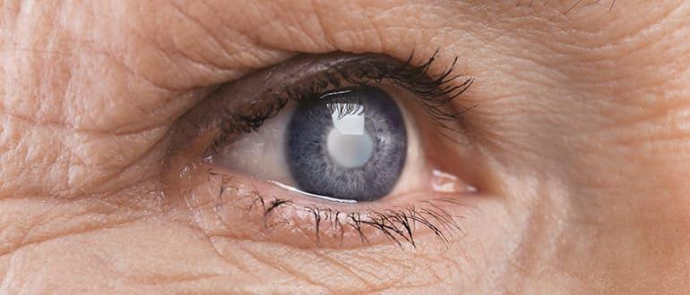 Осложненная катаракта глаз
