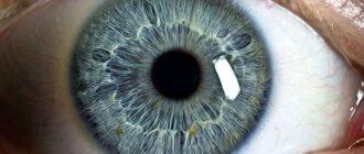 Почему появляются точки на радужной оболочке глаз