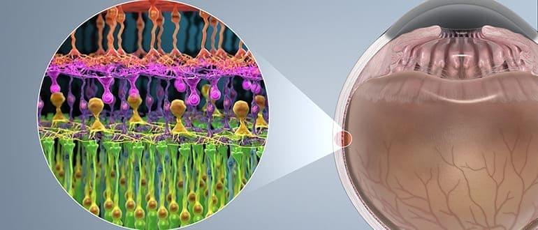 Сетчатка глаза — строение, симптомы заболеваний