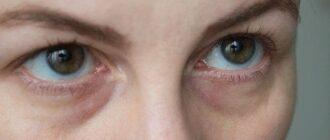 Синяки под глазами — причины, лечение, народные методы