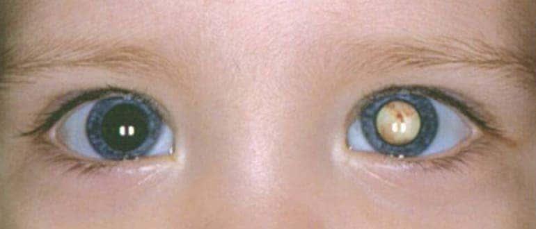 Врожденная катаракта — причины, виды и лечение