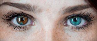 Глаза разного цвета (гетерохромия) — что это значит, причины